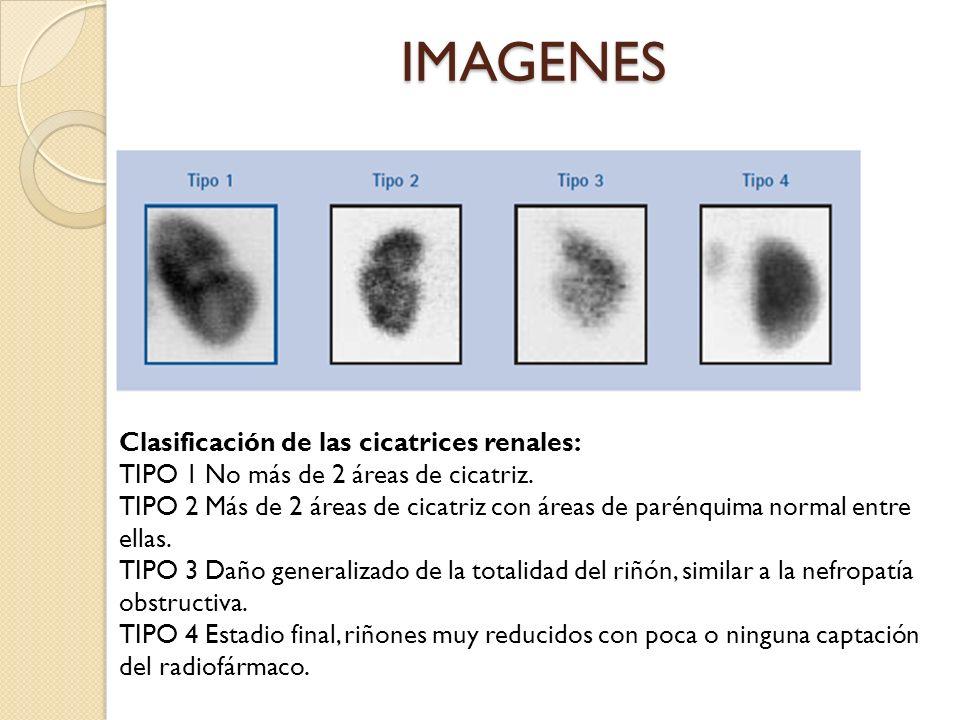 IMAGENES Clasificación de las cicatrices renales: