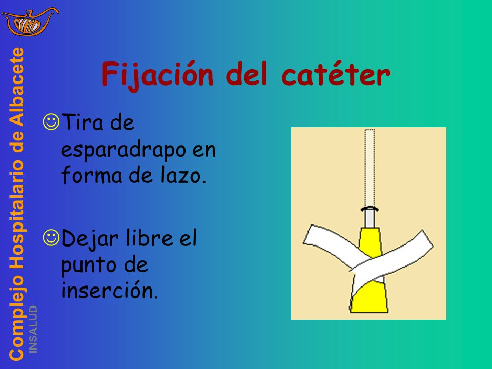 Fijación del catéter Tira de esparadrapo en forma de lazo.