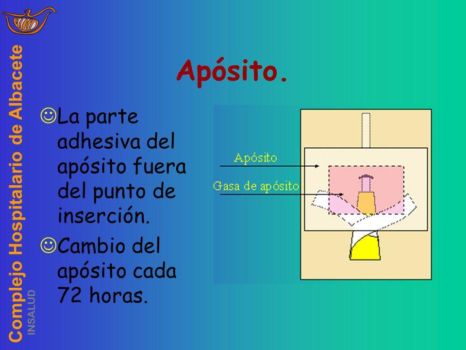 Apósito. La parte adhesiva del apósito fuera del punto de inserción.
