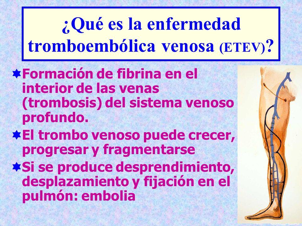 ¿Qué es la enfermedad tromboembólica venosa (ETEV)