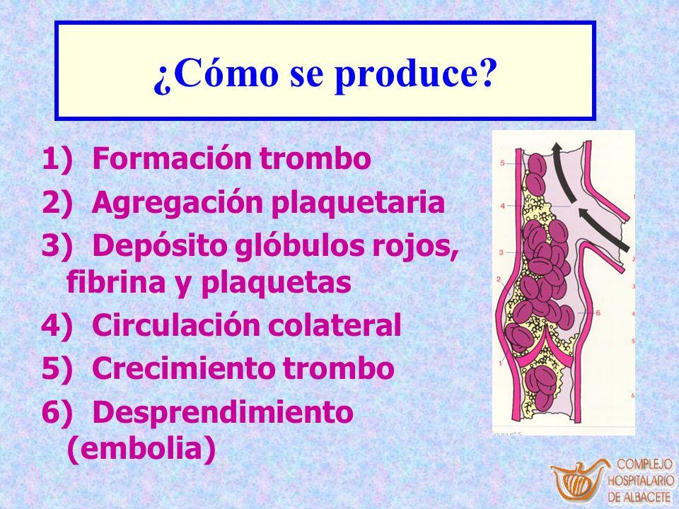 ¿Cómo se produce 1) Formación trombo 2) Agregación plaquetaria