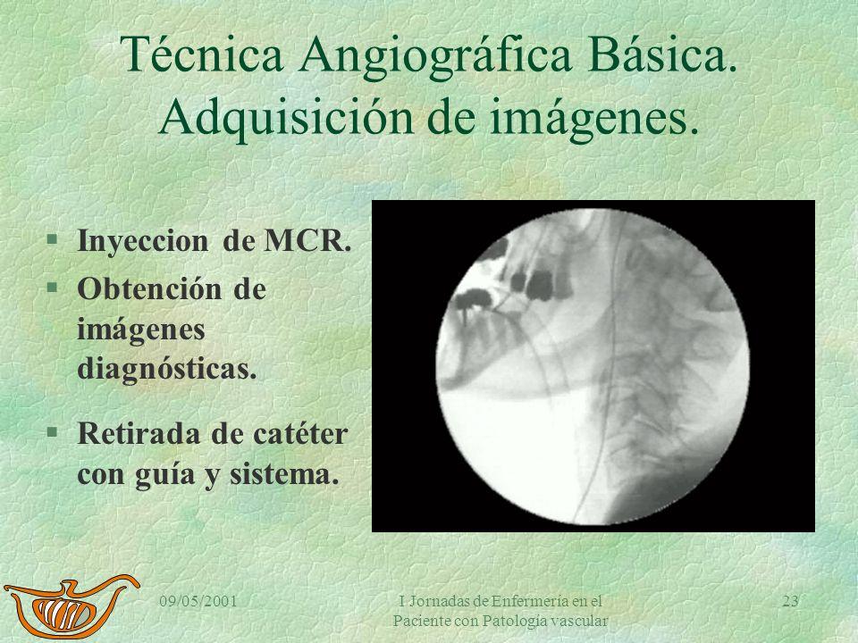 Técnica Angiográfica Básica. Adquisición de imágenes.
