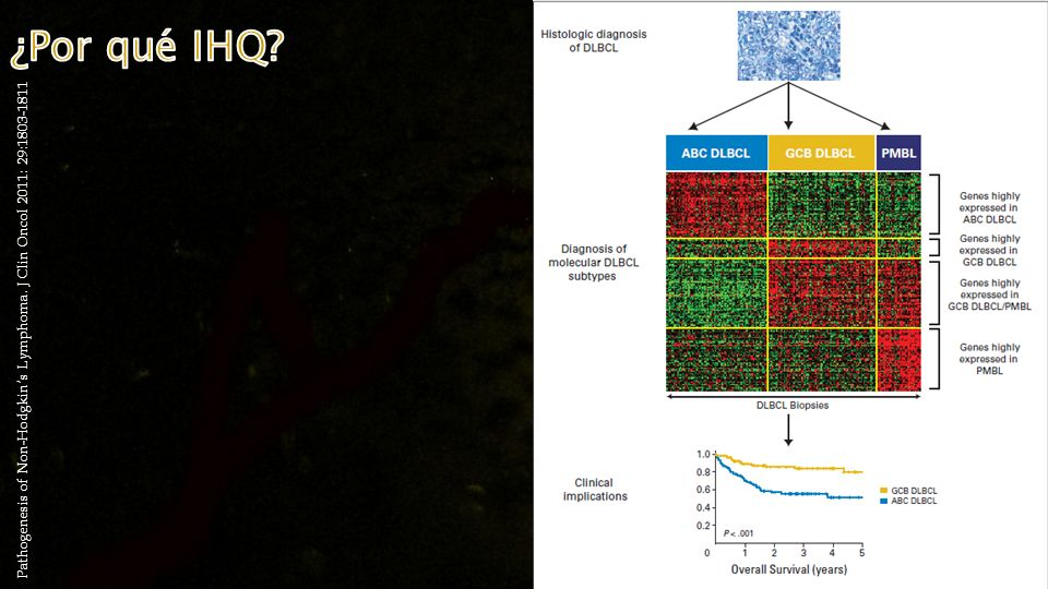 ¿Por qué IHQ Pathogenesis of Non-Hodgkin's Lymphoma. J Clin Oncol 2011: 29:1803-1811