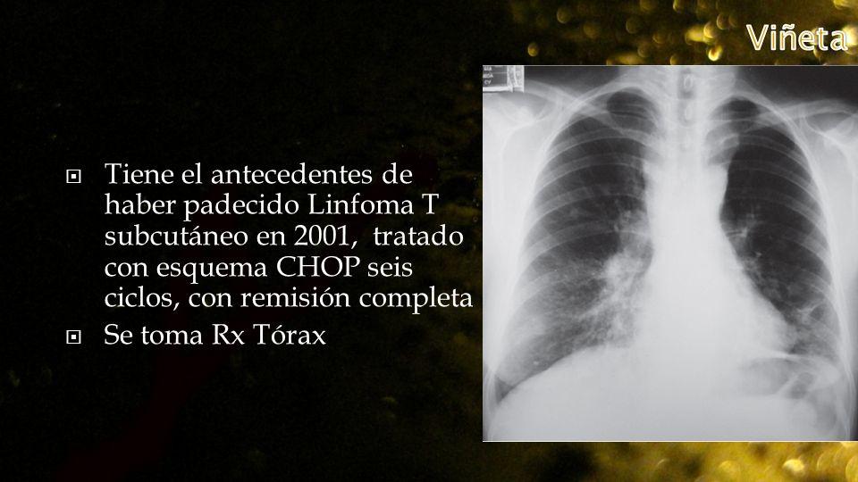 Viñeta Tiene el antecedentes de haber padecido Linfoma T subcutáneo en 2001, tratado con esquema CHOP seis ciclos, con remisión completa.
