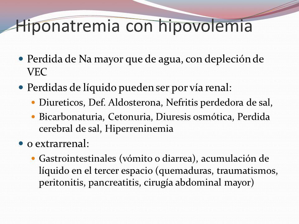 Hiponatremia con hipovolemia