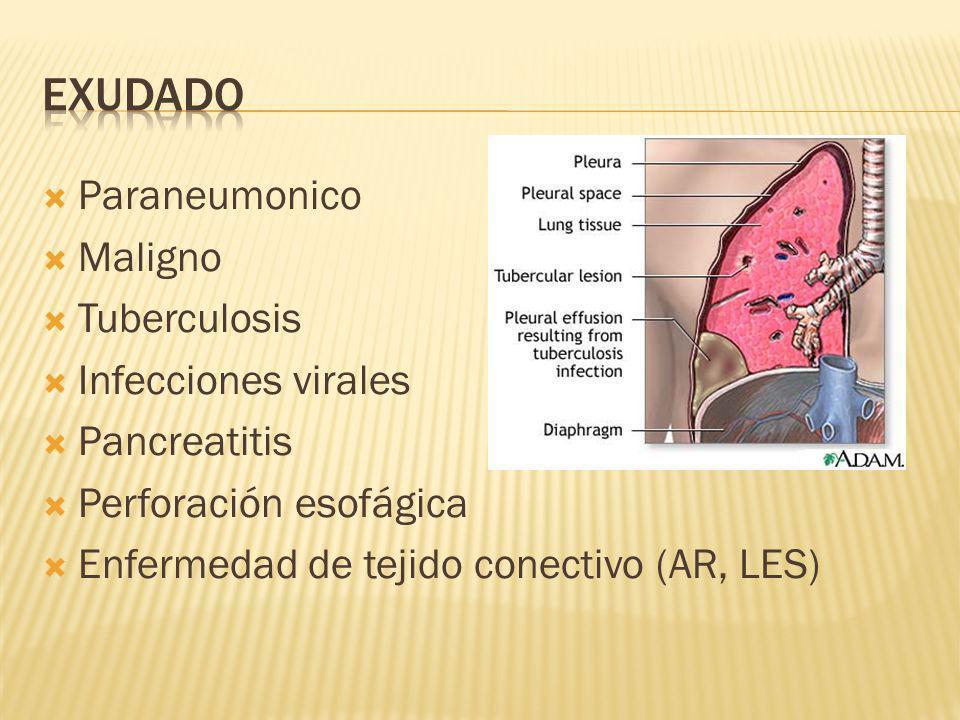 EXUDADO Paraneumonico Maligno Tuberculosis Infecciones virales