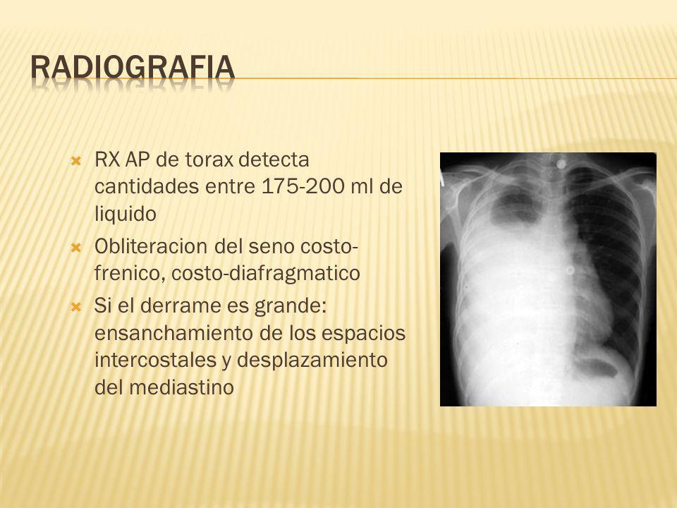 RADIOGRAFIA RX AP de torax detecta cantidades entre 175-200 ml de liquido. Obliteracion del seno costo-frenico, costo-diafragmatico.