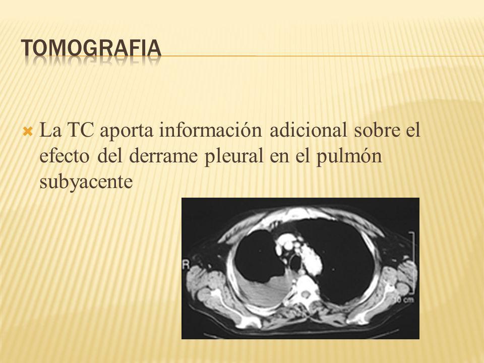 TOMOGRAFIA La TC aporta información adicional sobre el efecto del derrame pleural en el pulmón subyacente.