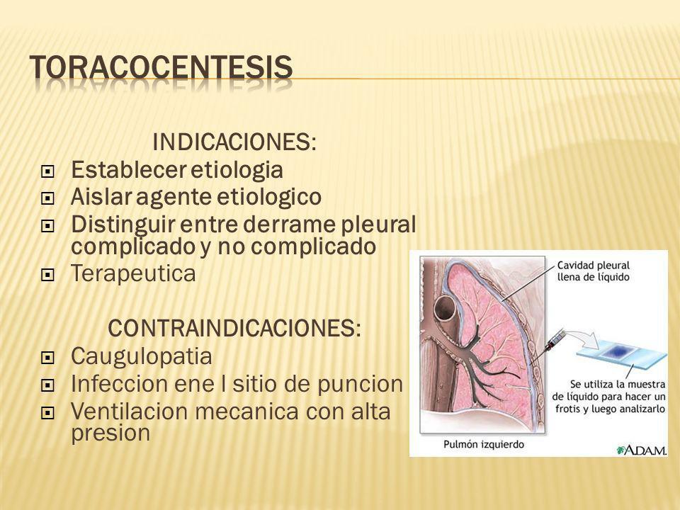 TORACOCENTESIS INDICACIONES: Establecer etiologia