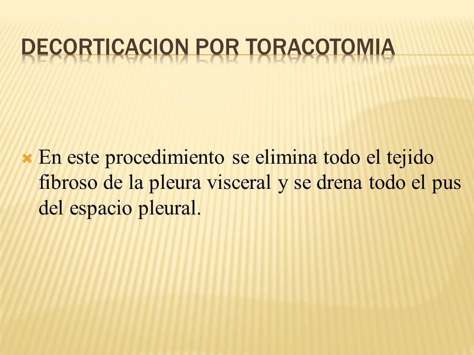 Decorticacion por Toracotomia