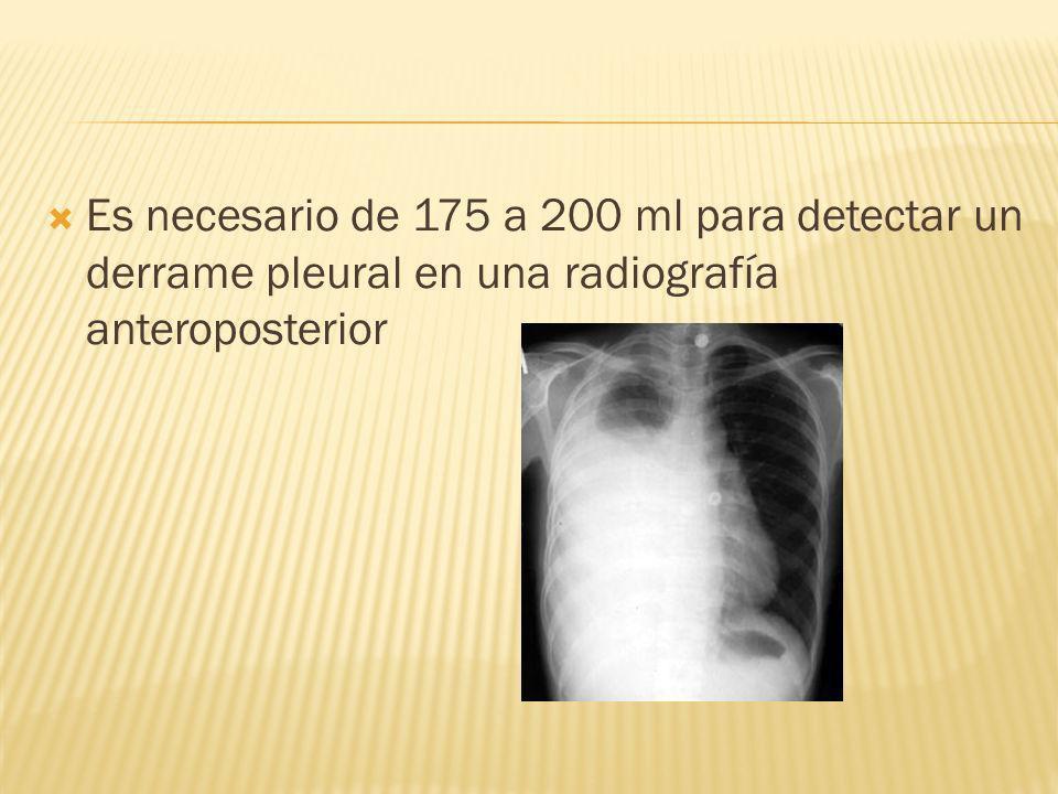 Es necesario de 175 a 200 ml para detectar un derrame pleural en una radiografía anteroposterior