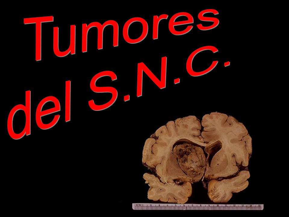 glioma.jpg Tumores del S.N.C. glioma.jpg