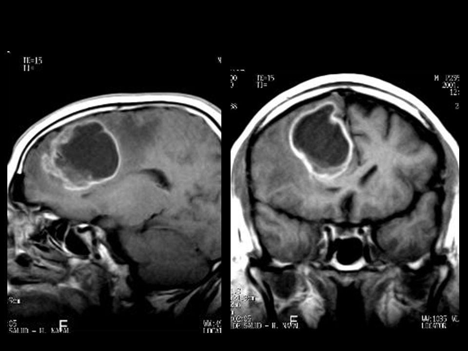 23575 astrocitoma pilocitico