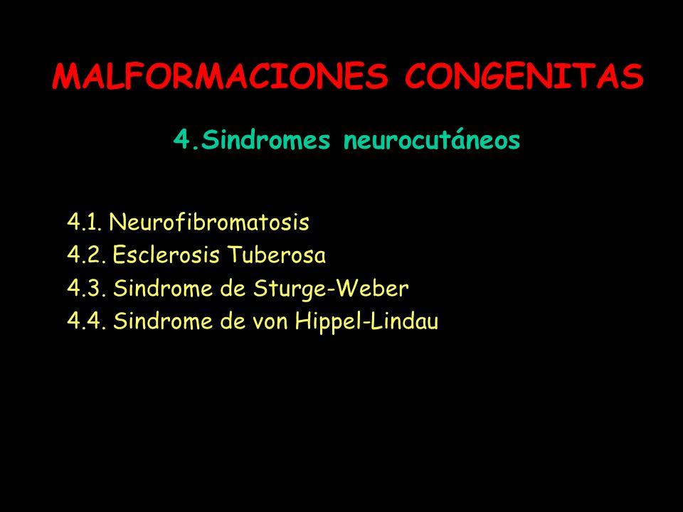 MALFORMACIONES CONGENITAS 4.Sindromes neurocutáneos