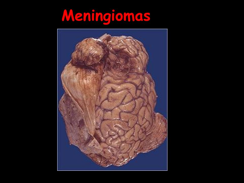 Meningiomas meningioma 03.jpg meningioma 03.jpg
