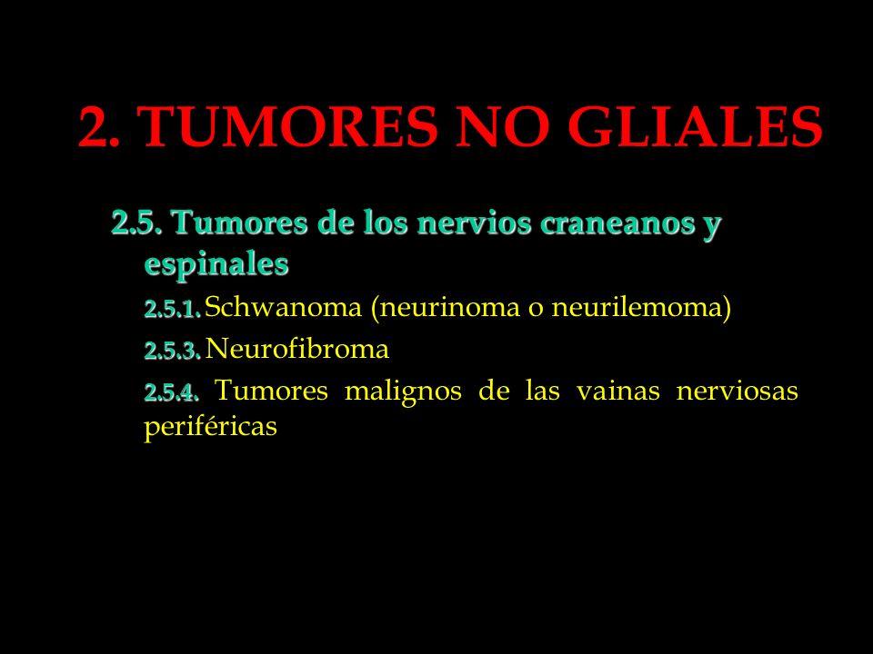 2. TUMORES NO GLIALES 2.5. Tumores de los nervios craneanos y espinales. 2.5.1. Schwanoma (neurinoma o neurilemoma)