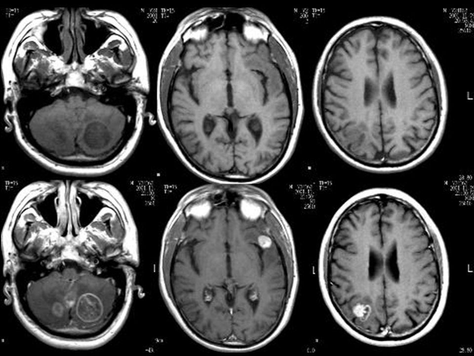 24162 mts cerebrales rmi lascano_julio_014.jpg lascano_julio_016.jpg