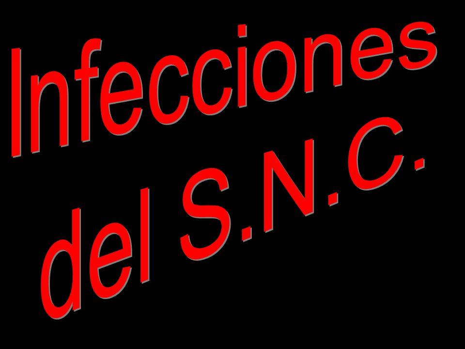 Infecciones del S.N.C.