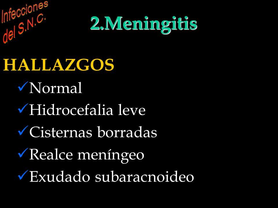 INFECCIONES DEL S.N.C. 2.Meningitis
