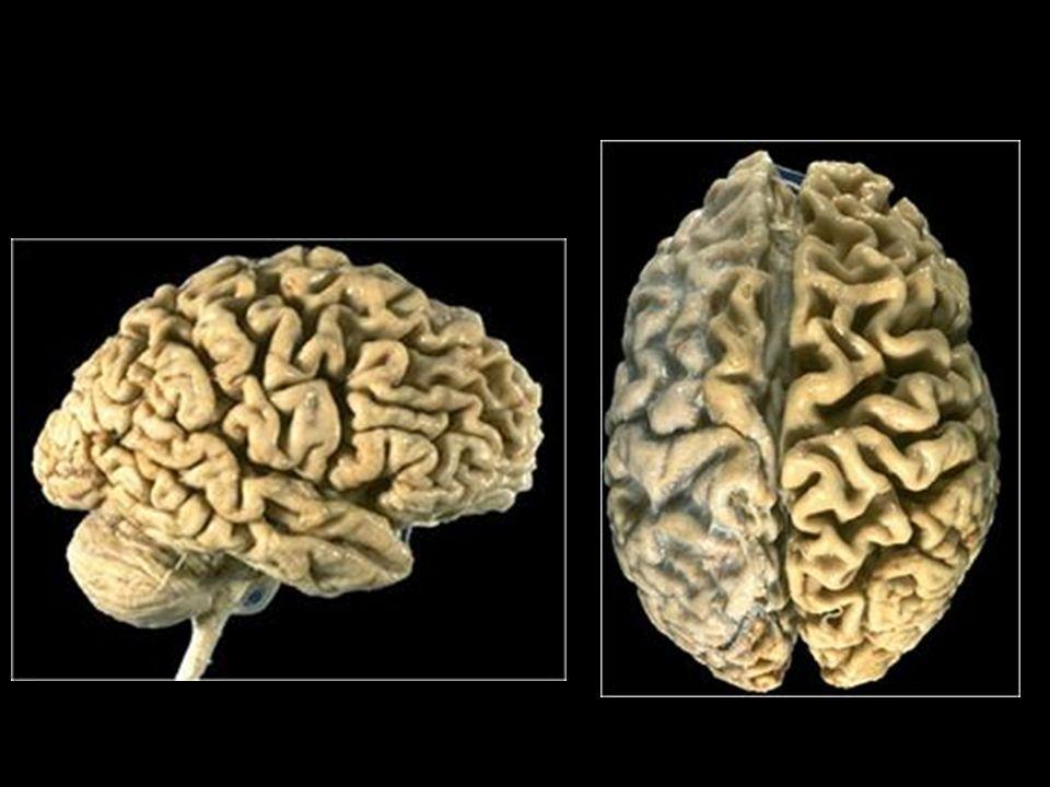 Alzheimer s disease 02.jpg