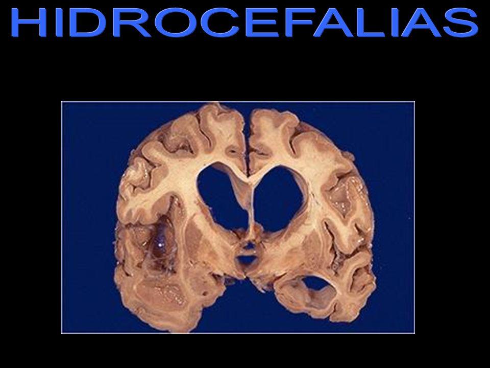 HIDROCEFALIAS hidrocefalia.jpg