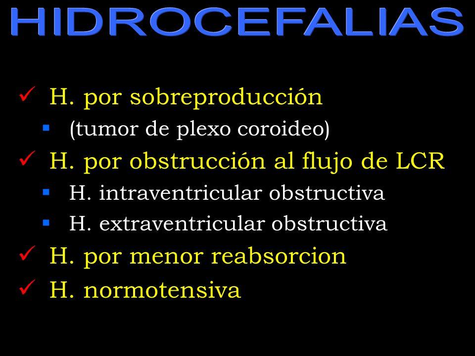 H. por obstrucción al flujo de LCR