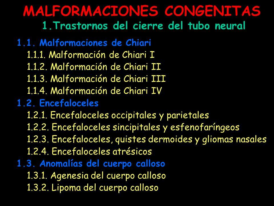 MALFORMACIONES CONGENITAS 1.Trastornos del cierre del tubo neural