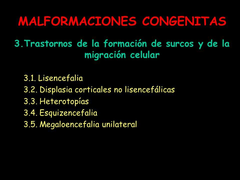 MALFORMACIONES CONGENITAS 3