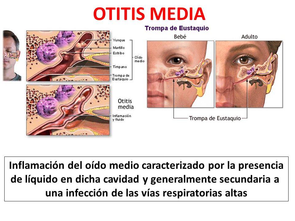 OTITIS MEDIA Inflamación del oído medio caracterizado por la presencia