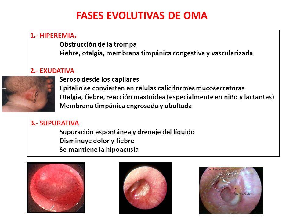 FASES EVOLUTIVAS DE OMA