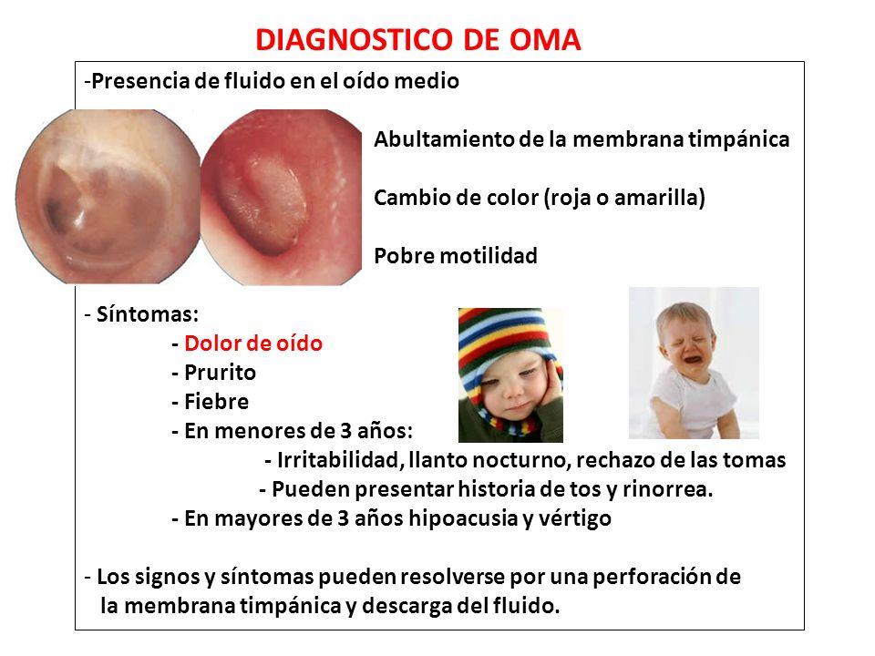 DIAGNOSTICO DE OMA Presencia de fluido en el oído medio