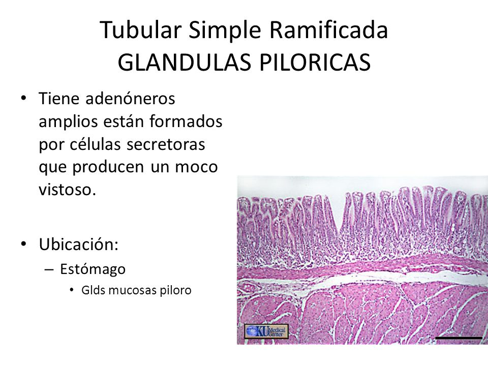 Tubular Simple Ramificada GLANDULAS PILORICAS
