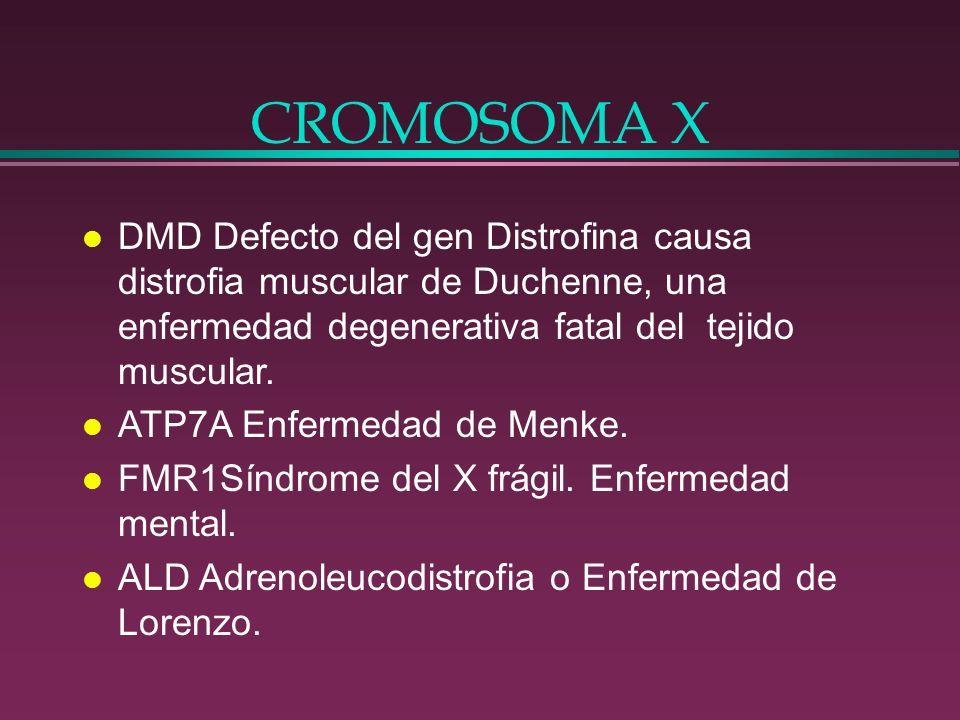 CROMOSOMA X DMD Defecto del gen Distrofina causa distrofia muscular de Duchenne, una enfermedad degenerativa fatal del tejido muscular.