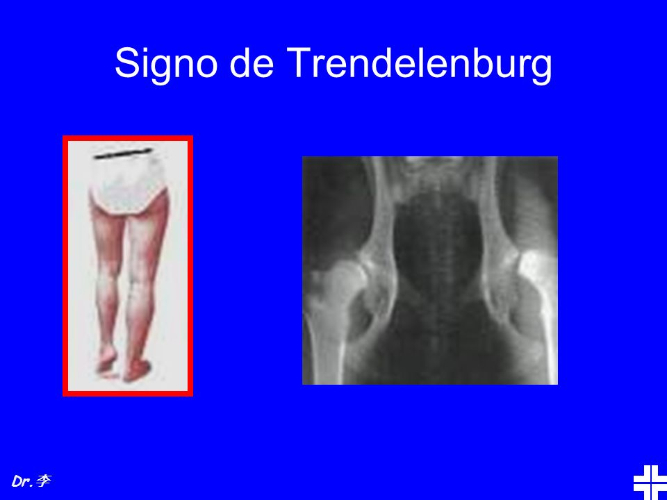 Signo de Trendelenburg
