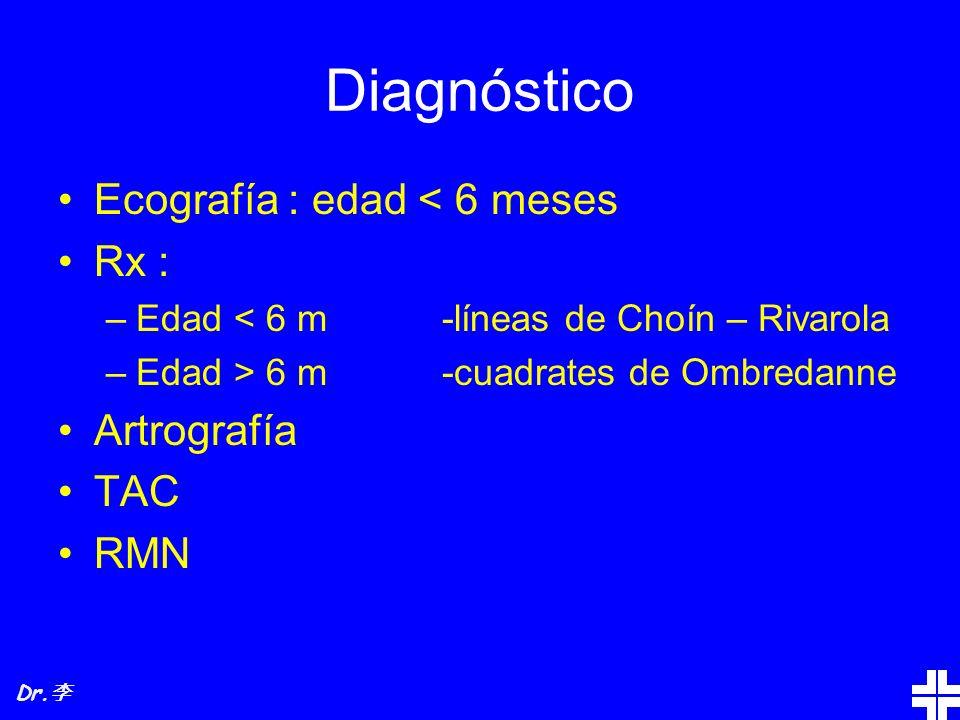 Diagnóstico Ecografía : edad < 6 meses Rx : Artrografía TAC RMN