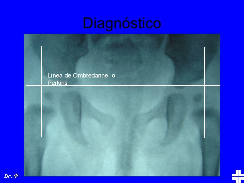 Diagnóstico Línea de Ombredanne o Perkins Dr.李