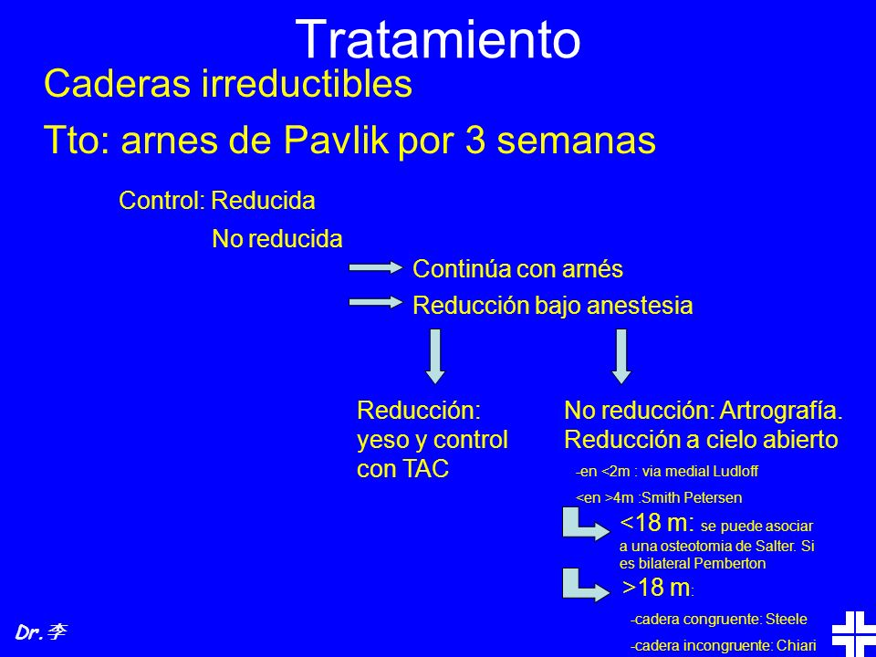 Tratamiento Caderas irreductibles Tto: arnes de Pavlik por 3 semanas