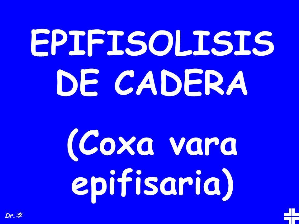 EPIFISOLISIS DE CADERA (Coxa vara epifisaria)