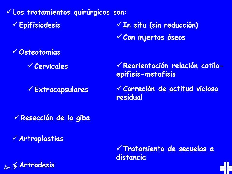 Los tratamientos quirúrgicos son: