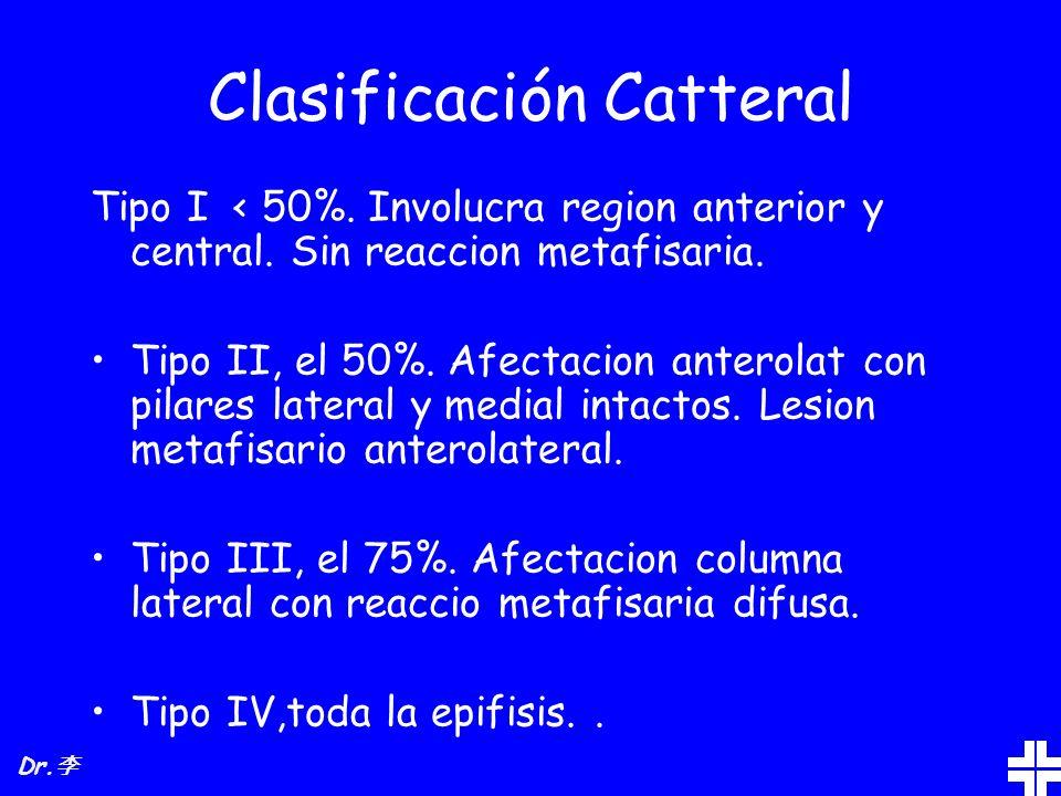 Clasificación Catteral