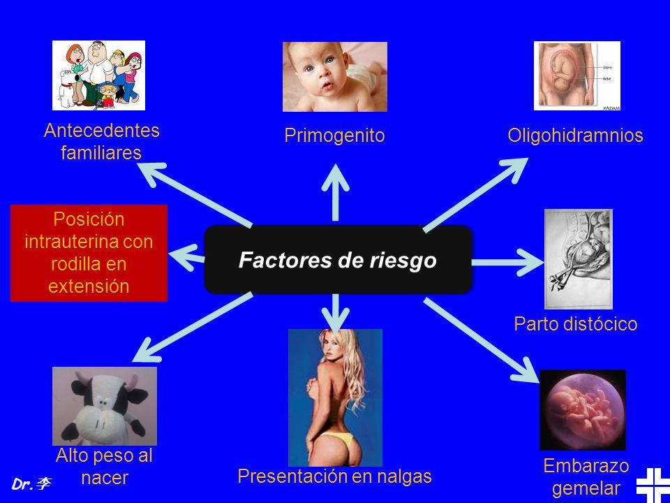 Factores de riesgo Antecedentes familiares Primogenito Oligohidramnios