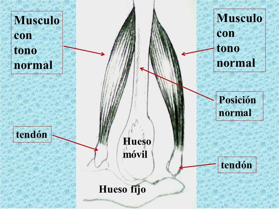 Musculo Musculo con con tono tono normal normal Posición normal tendón