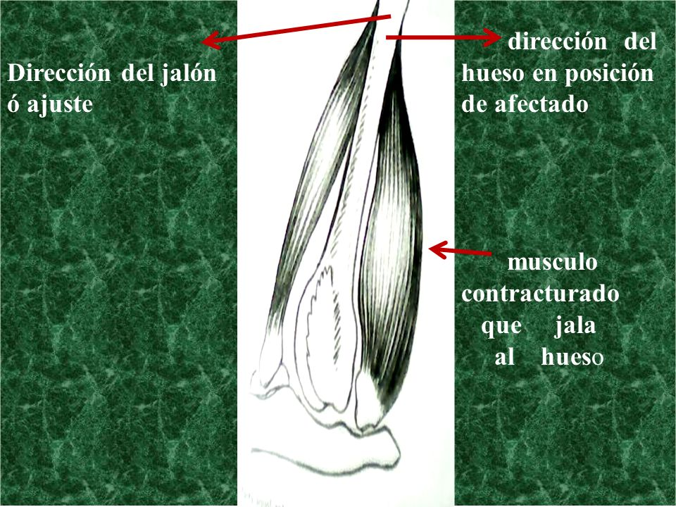 Dirección del jalón ó ajuste hueso en posición de afectado musculo