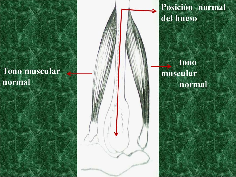 Tono muscular normal Posición normal del hueso tono muscular normal