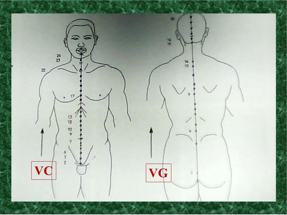 VC VG