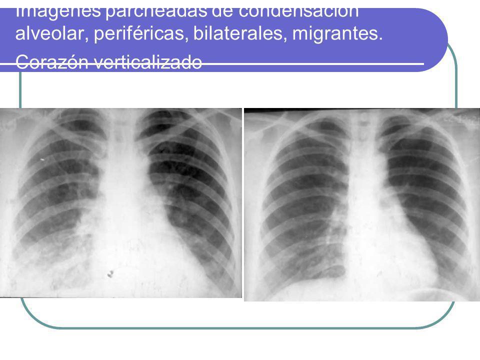 Imágenes parcheadas de condensación alveolar, periféricas, bilaterales, migrantes.