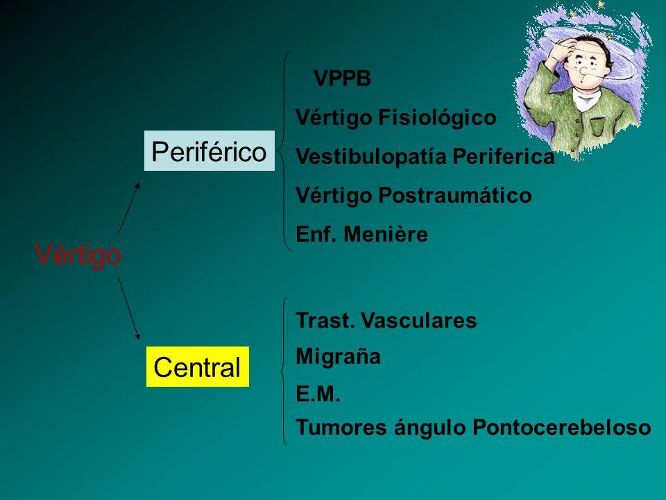 Periférico Vértigo Central VPPB Vértigo Fisiológico