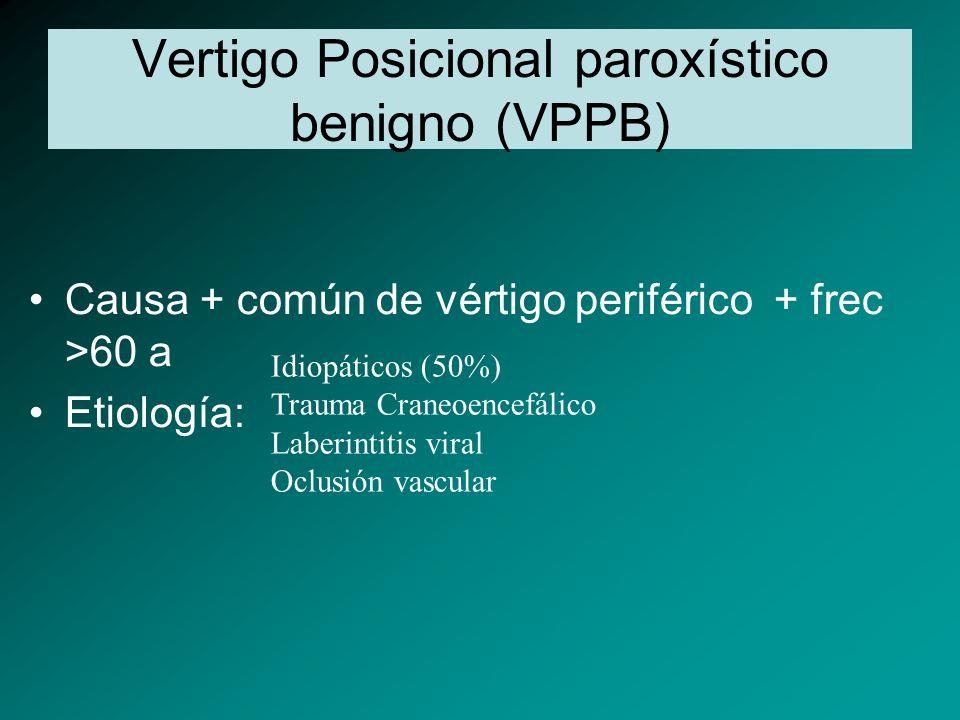 Vertigo Posicional paroxístico benigno (VPPB)