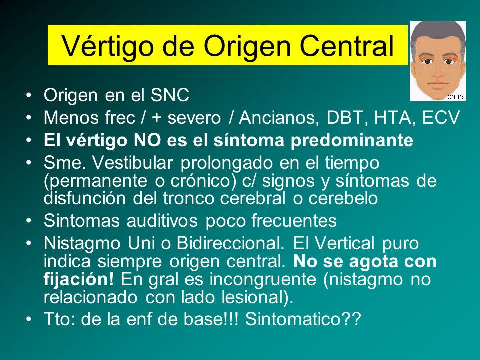 Vértigo de Origen Central
