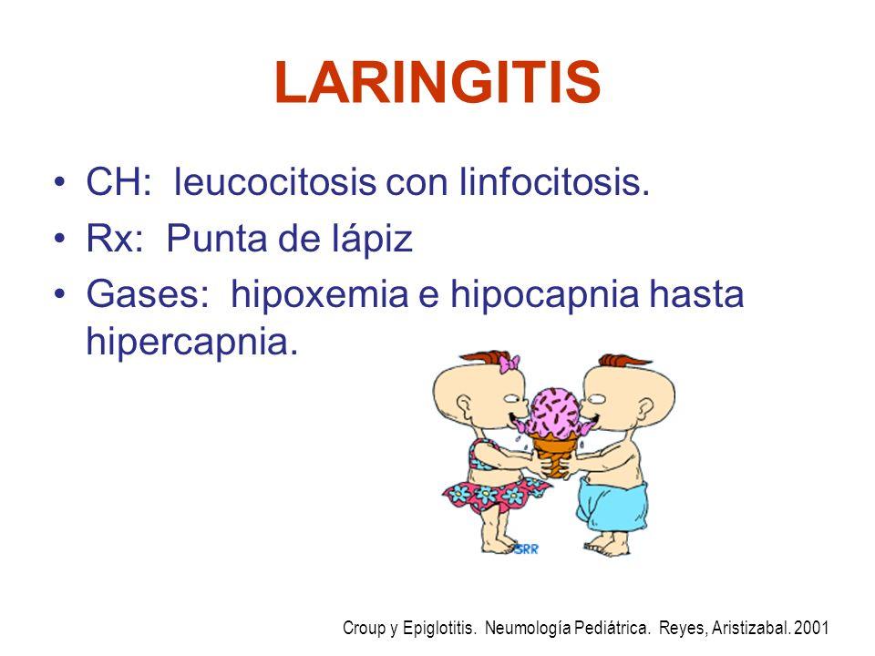 LARINGITIS CH: leucocitosis con linfocitosis. Rx: Punta de lápiz